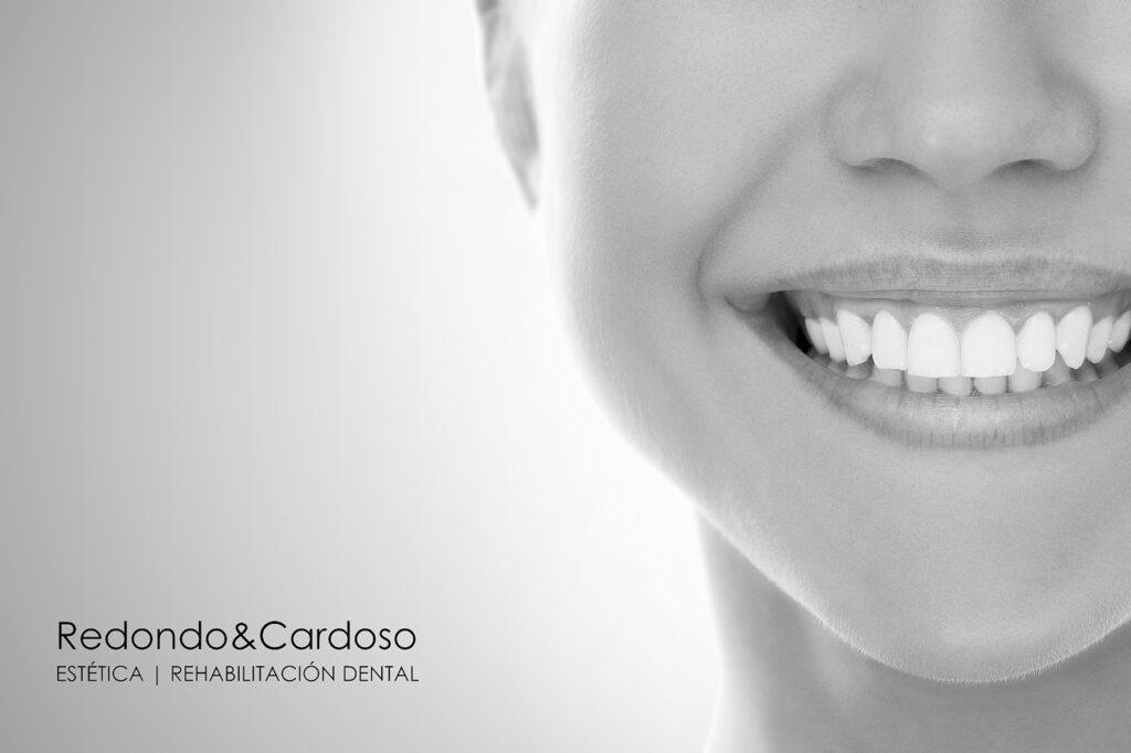 Mujer sonriendo sin sensibilidad dental